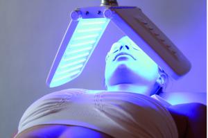 Peeling et LED